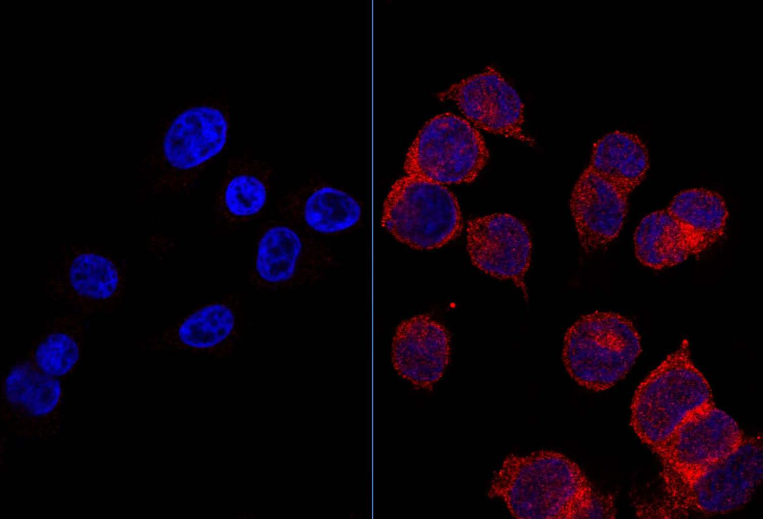foto Left, healthy cells with glucose receptors in red. Right, tumor cells with glucose in red receptors.