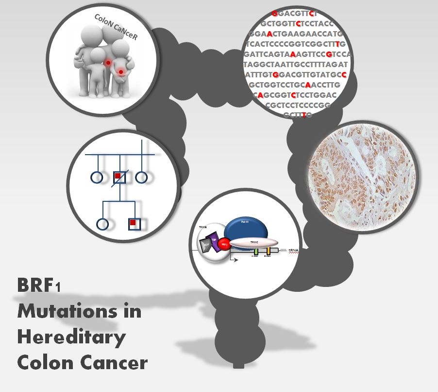 foto A new genetic marker accounts for up to 1.4% of cases of hereditary colon cancer